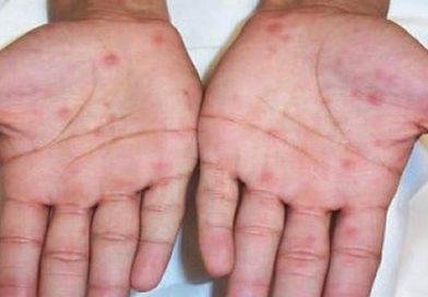 Treating Syphilis at Khokar