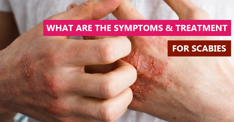 What are the Symptoms & Treatment for Scabies