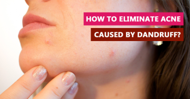 How to eliminate acne caused by dandruff