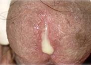 White male penis